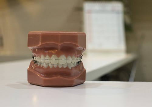 Model teeth displaying traditional orthodontics Glasgow in the form of metal braces
